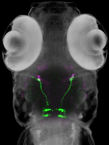 Abducens motor neurons (green) and extraocular muscles (magenta) in a live zebrafish larva.