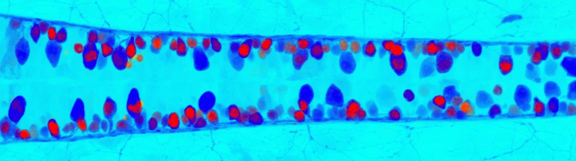細胞に凍てる雫、TDP−43液滴とALSの接点を探る(13)
